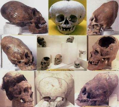 Montage Of Differing Skull Shapes.