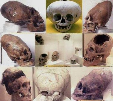 Image Of A Collection Of Large Differently Shaped Skulls Of Yore.